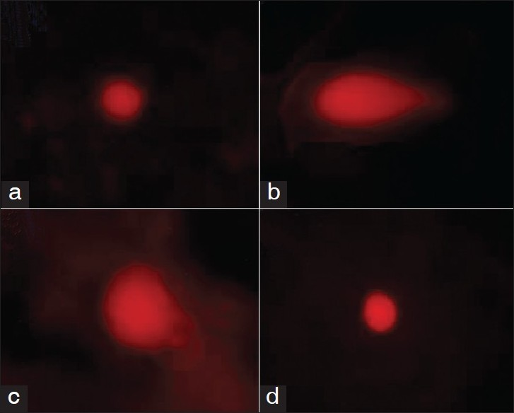 Figure 1: Representative photographs depict the extent of DNA damage in control (a), DMBA-treated hamsters (b), DMBA + Coumarin treated hamsters (c) and coumarin alone treated hamsters (d) (× 40 magnification)