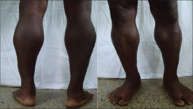Figure 2: Photograph of the patient in the case report showing Hypertrophy of calf muscles of both the lower limbs