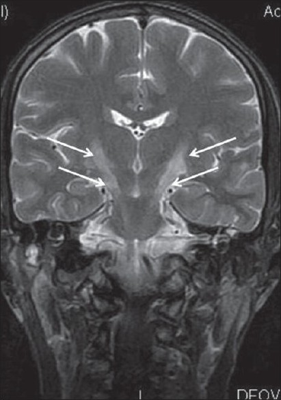 Figure 2: Coronal T2WI showing bilateral symmetrical hyperintensity along corticospinal tract (thin white arrows) forming a 'wine glass appearance'.