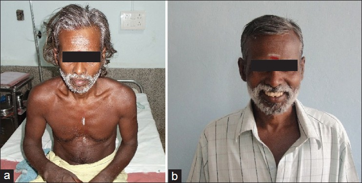 Figure 2: (a) Photograph of patient on day 3 of parkinsonism showing mask-like face and rigid posture. (b) The patient 1 week after discharge from hospital