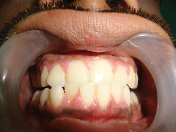 Figure 6: Clinical picture of gingival enlargement in a male epileptic patient (Grade 1) after 2 months of initiation of phenytoin therapy