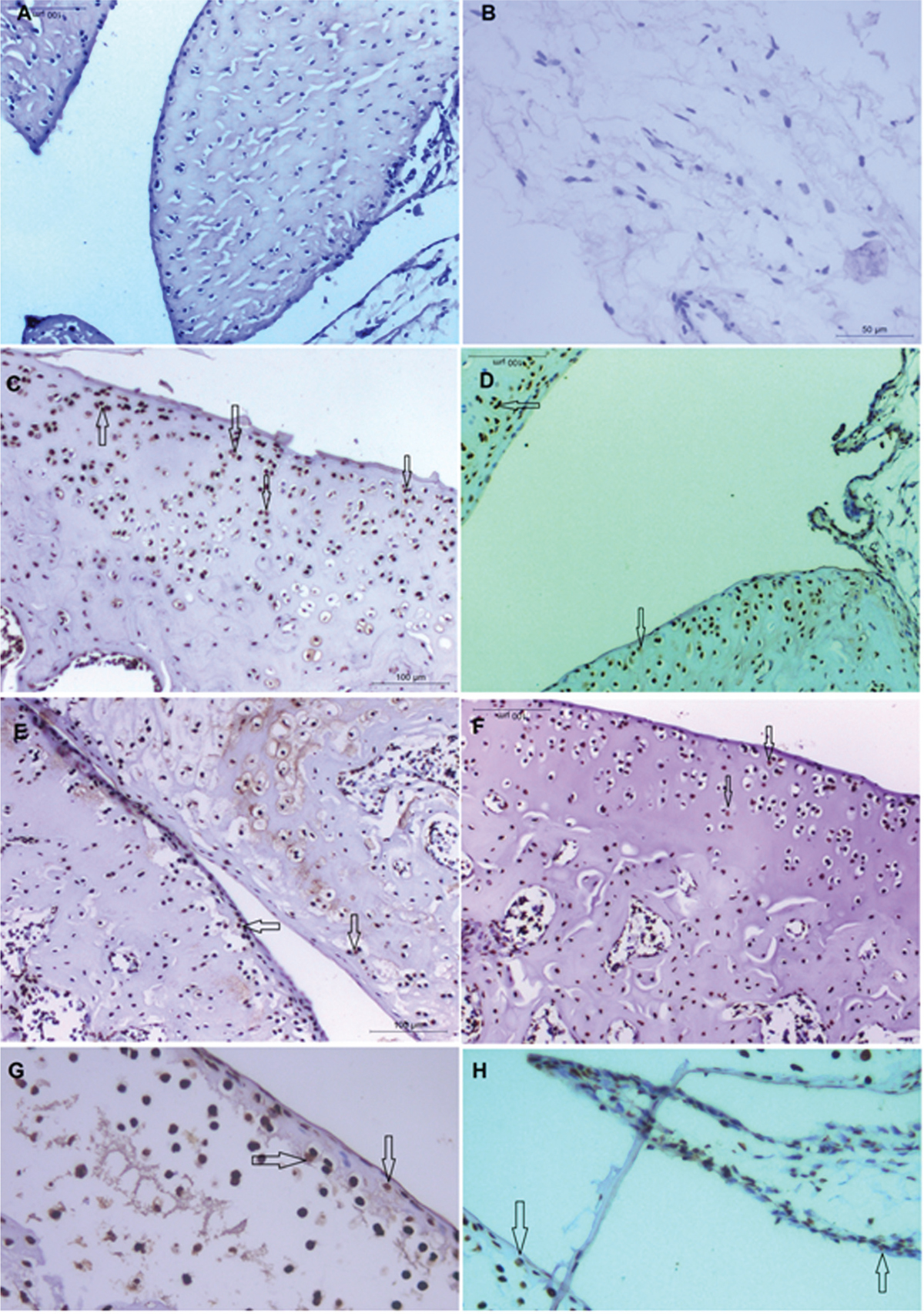 Figure 3 Immunohistochemical staining of articular tissue from different groups. (A) Section at the knee joint of the control group showing a negative reaction for cyclooxygenase (COX-2; ×200). (B) Section at the knee joint of the arthritic group with many cells exhibiting a positive cytoplasmic reaction (arrows) (COX-2; ×200). (C) Section at the knee joint of the OMEGA-treated group showing a positive reaction in some cells in the articular cartilage as well as in the synovial membrane (arrows) (COX-2; ×200). (D) Section at the knee joint of the DEX-treated group showing a positive reaction in few cells in the articular cartilage (arrows) (COX-2; ×200). (E) Section at the knee joint of the MTX-treated group showing a positive reaction in some cells in the articular cartilage (arrows) (COX-2; ×200). (F) Section at the knee joint of the OMEGA combined with the DEX-treated group showing a positive reaction in few cells in the articular cartilage (arrows) (COX-2; ×400). (G) Section at the knee joint of the OMEGA combined with the MTX-treated group showing a positive reaction in relatively few cells in the articular cartilage as well as in the synovial membrane (arrows) (COX-2; ×400). DEX, dexamethasone; MTX, methotrexate; OMEGA, omega-3.