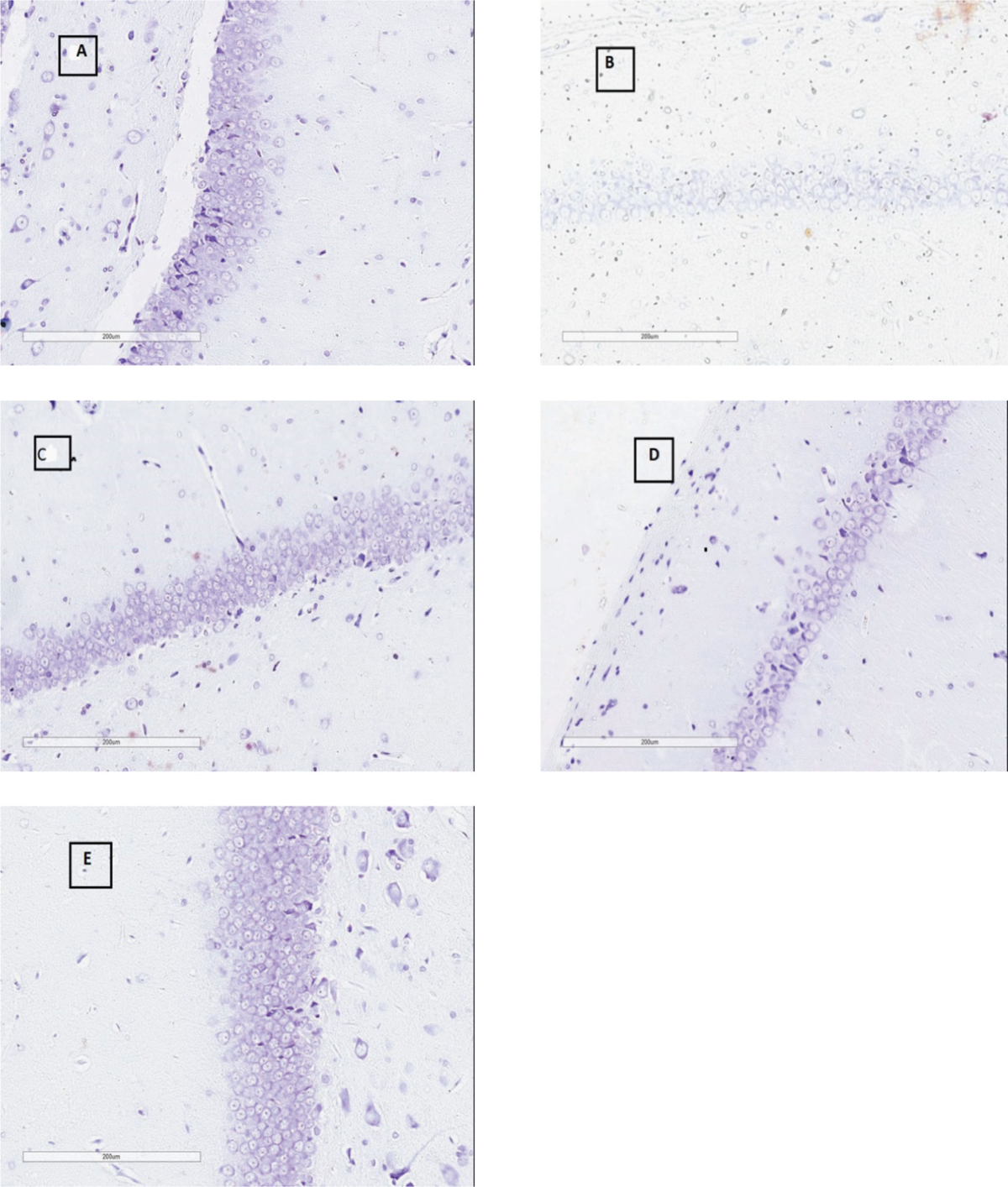 Figure 3 Pyramidal cells within 1 mm of CA-1 region of hippocampus under high power magnification (40x) in different groups of study Sham (A), 2VO (B), Vit E(C), CoQ10 (D), Combination group (E)